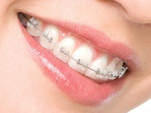 ortodontia-2